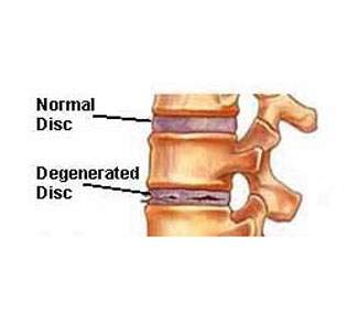 Degenerative Disc Disease Body Mechanics And Preventative Exercises
