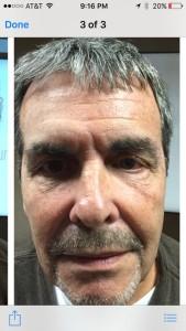 Jay Sargeant half face jouve