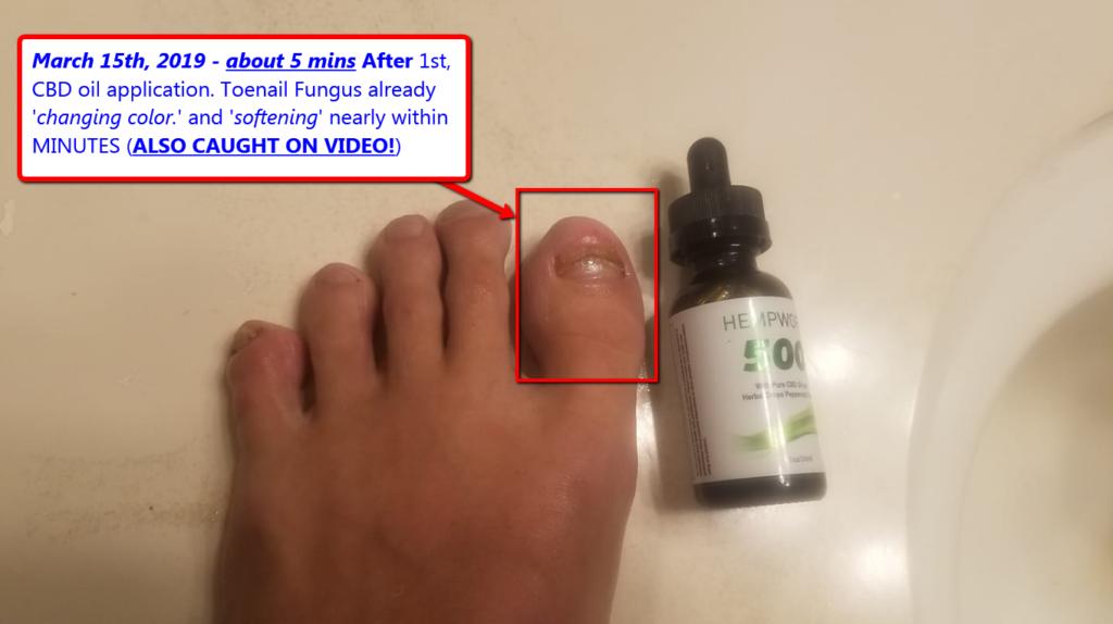 After 5 Mins of Toenail Fungus CBD Oil Application (Hempworx CBD Oil)