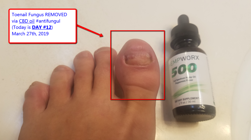 Best Toenail Fungus Treatment? [12 Day Remedy via CBD oil?]